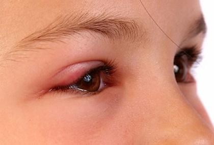Cách điều trị viêm bờ mi mắt, cach dieu tri viem bo mi mat