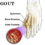 Cách phòng và điều trị bệnh gout hiệu quả, cach phong va dieu tri benh gout hieu qua
