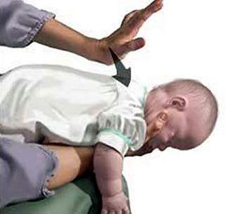 Biểu hiện, cách sơ cứu khi trẻ bị sặc sữa, cháo tại nhà, bieu hien, cach so cuu khi tre bi sac sua, chao