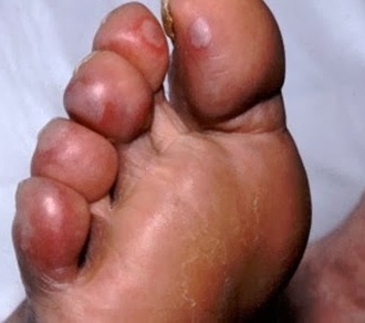 Cách phòng và chữa cước chân tay vào trời lạnh, cach phong cuoc chan tay